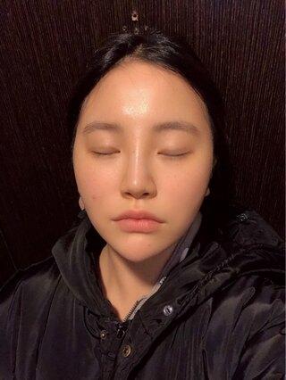 立体美容外科の頬骨手術の症例写真(ビフォー)