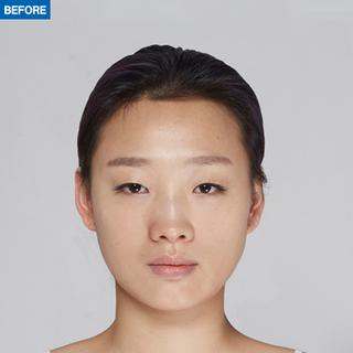 マーブル整形外科の自然癒着、鼻整形、額の脂肪移植の症例写真(ビフォー)