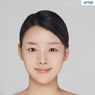 マーブル整形外科の自然癒着、鼻整形、額の脂肪移植の症例写真(アフター)