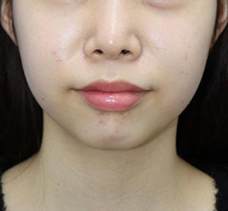 オザキクリニックLUXE新宿の顔の脂肪吸引(頬・あご下)の症例写真(ビフォー)