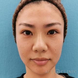 エースクリニックのヒアルロン酸注入(こめかみ・頬のこけ)の症例写真(ビフォー)