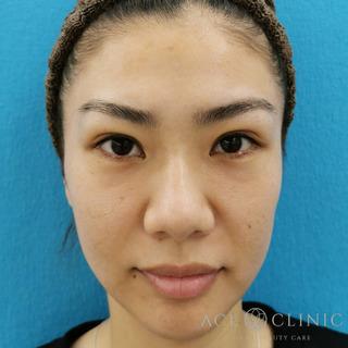 エースクリニックのヒアルロン酸注入(こめかみ・頬のこけ)の症例写真(アフター)