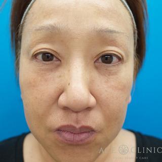 エースクリニックのヒアルロン酸リフトの症例写真(アフター)