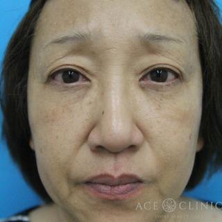 エースクリニックのヒアルロン酸リフトの症例写真(ビフォー)