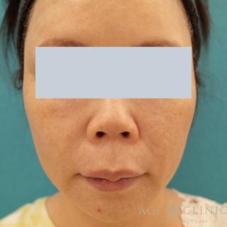 エースクリニックのVOVリフトプレミアムの症例写真(アフター)