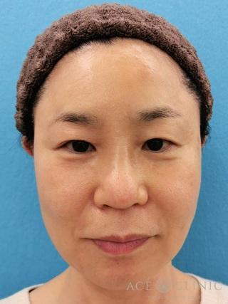 エースクリニックのほうれい線・マリオネットライン ヒアルロン酸注射の症例写真(アフター)