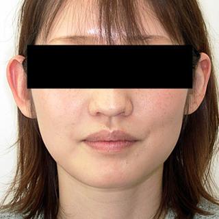 カトレア歯科・美容クリニック(旧クローバー歯科・美容クリニック輪郭整形部門)の上下セットバックの症例写真(アフター)