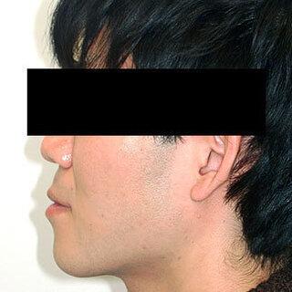 カトレア歯科・美容クリニック(旧クローバー歯科・美容クリニック輪郭整形部門)の下あごセットバックの症例写真(ビフォー)
