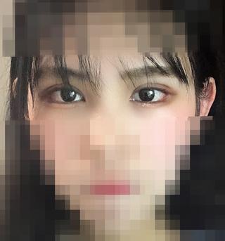 加美(GAMI)整形外科の目の再手術の症例写真(アフター)