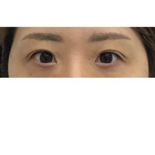 東郷美容形成外科 福岡の目頭切開の症例写真(ビフォー)