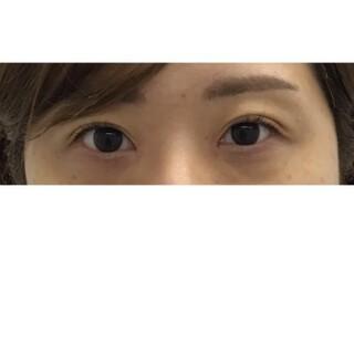 東郷美容形成外科 福岡の目頭切開の症例写真(アフター)