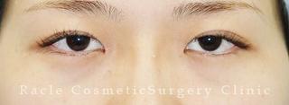 新宿ラクル美容外科クリニック 新宿院の目頭切開の症例写真(ビフォー)