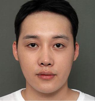 ITEM美容(整形)外科の目の再手術/ 鼻の再手術/脂肪移植の症例写真(ビフォー)