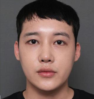 ITEM美容(整形)外科の目の再手術/ 鼻の再手術/脂肪移植の症例写真(アフター)