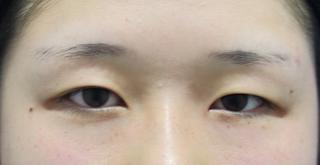 東京イセアクリニック銀座院の【何点留めても一律料金!】イセアの二重埋没法(3年保証付き) の症例写真(ビフォー)