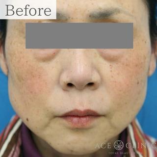 エースクリニックの肝斑・しみ治療 ピコレーザートーニングの症例写真(ビフォー)