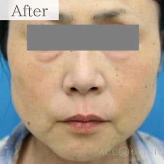 エースクリニックの肝斑・しみ治療 ピコレーザートーニングの症例写真(アフター)