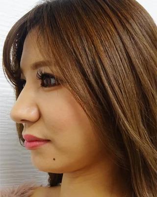 東京中央美容外科 池袋院のTCB式小顔美肌再生の症例写真(ビフォー)