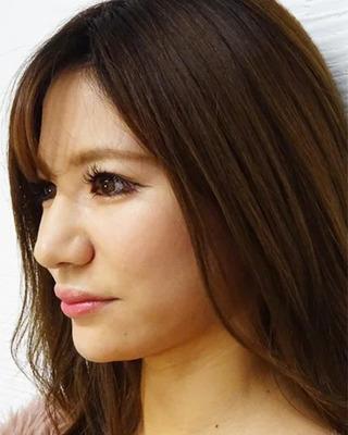 東京中央美容外科 池袋院のTCB式小顔美肌再生の症例写真(アフター)