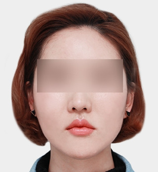 ギャルムハン整形外科の輪郭3点の症例写真(アフター)