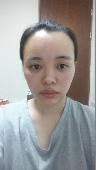 トップフェイス整形外科の鼻(再手術)・目・脂肪移植の症例写真(ビフォー)