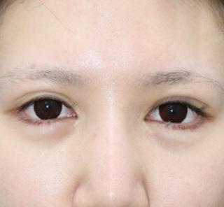 オザキクリニックLUXE新宿のたれ目・でか目形成+目尻切開の症例写真(アフター)