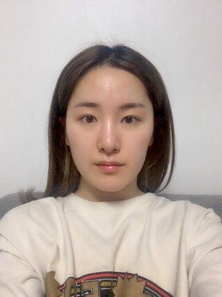 TL美容整形外科 顔面輪郭・目・鼻センターの輪郭2点(3D頬骨縮小術、前顎T字骨切り),鼻再手術(鼻中隔、骨切り)の症例写真(ビフォー)