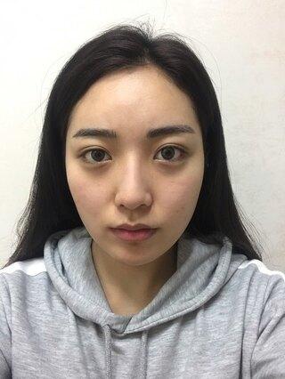 TL美容整形外科 顔面輪郭・目・鼻センターの輪郭3点(3D頬骨縮小術、長曲線エラ縮小術、前顎V字骨切り),鼻再手術(骨切り,わし鼻,真皮移植)非切開目つき矯正の症例写真(ビフォー)