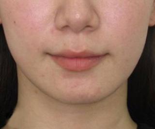 福岡TAクリニックのキツネライン(ツヤ肌コラーゲンリフト+バッカルファット除去+エラボツリヌストキシン+顎ヒアルロン酸注入)の症例写真(ビフォー)