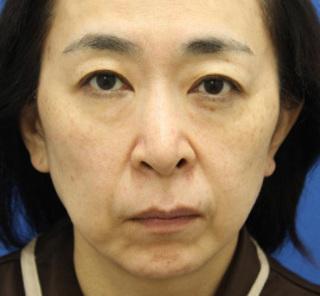 オザキクリニックLUXE新宿の3Dリポアイリフト(目の下の脱脂+目の下の脂肪注入)の症例写真(ビフォー)