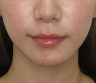 福岡TAクリニックのキツネライン(ツヤ肌コラーゲンリフト+バッカルファット除去+エラボツリヌストキシン+顎ヒアルロン酸注入)の症例写真(アフター)