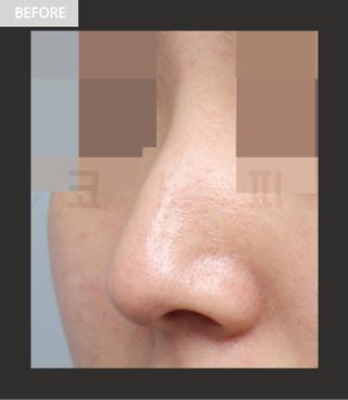 CONOPI (コノピ)整形外科の曲がった鼻整形(鷲鼻)の症例写真(ビフォー)