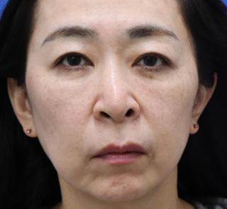 オザキクリニックLUXE新宿の3Dリポアイリフト(目の下の脱脂+目の下の脂肪注入)の症例写真(アフター)