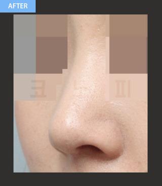 CONOPI (コノピ)整形外科の曲がった鼻整形(鷲鼻)の症例写真(アフター)