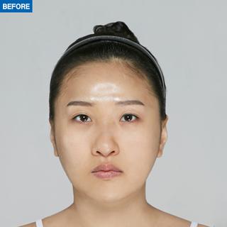マーブル整形外科の目つき矯正+糸リフト+脂肪移植(フルフェイス)+鼻整形の症例写真(ビフォー)