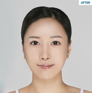 マーブル整形外科の目つき矯正+糸リフト+脂肪移植(フルフェイス)+鼻整形の症例写真(アフター)