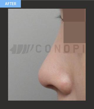 CONOPI (コノピ)整形外科のブタ鼻整形(骨切り+シリコン)の症例写真(アフター)