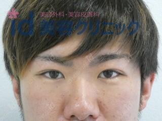 id美容クリニック銀座院のセブンロック(埋没)の症例写真(アフター)
