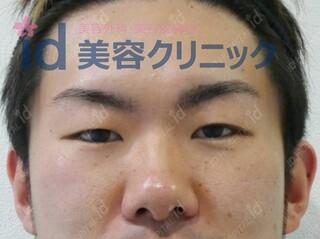 id美容クリニック銀座院のセブンロック(埋没)の症例写真(ビフォー)