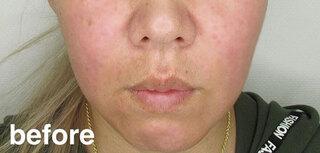 高崎TAクリニックアソシエのTAC式ツヤ肌コラーゲンリフトの症例写真(ビフォー)