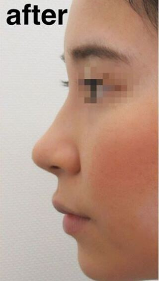 高崎TAクリニックアソシエの鼻尖4Dノーズ +鼻尖縮小術 の症例写真(アフター)