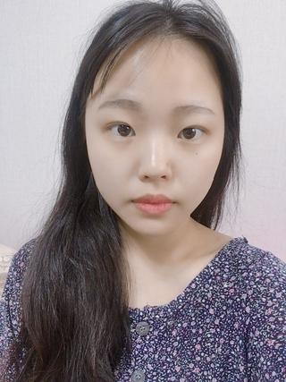 トップフェイス整形外科の目再手術・鼻先整形・脂肪移植の症例写真(ビフォー)