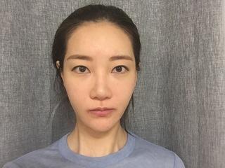 トップフェイス整形外科の糸リフト・目再手術・鼻再手術・脂肪移植の症例写真(ビフォー)