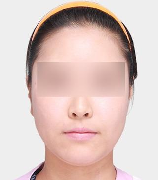 ギャルムハン整形外科のエラ / 前顎 / 顔の脂肪吸引の症例写真(ビフォー)