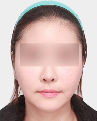 ギャルムハン整形外科のエラ / 前顎 / 顔の脂肪吸引の症例写真(アフター)