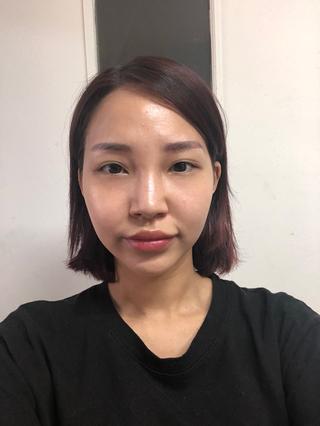 トップフェイス整形外科の鼻整形・エンジェルアイ・脂肪移植の症例写真(ビフォー)