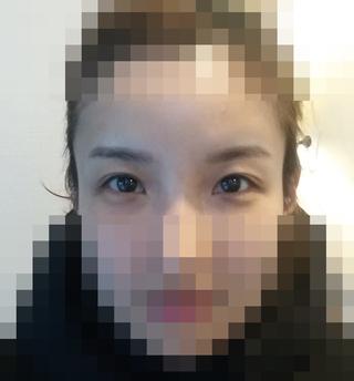 加美(GAMI)整形外科の目の手術の症例写真(ビフォー)