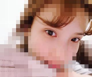 加美(GAMI)整形外科の目の手術の症例写真(アフター)
