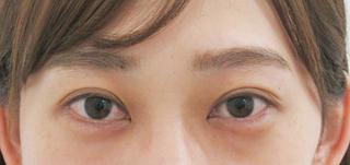 銀座TAクリニックの目尻靭帯移動術+グラマラスライン切開の症例写真(ビフォー)