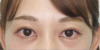 銀座TAクリニックの目尻靭帯移動術+グラマラスライン切開の症例写真(アフター)